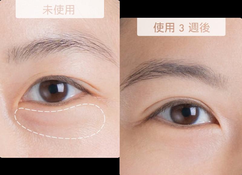 眼周細紋變得更平整
